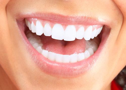 Close up of bright smile l 47630 dentist