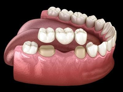 Model of dental bridge l 47630 dental bridges