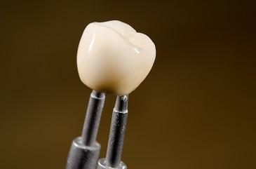 close-up of dental implant in evansville, in I reliant family dental