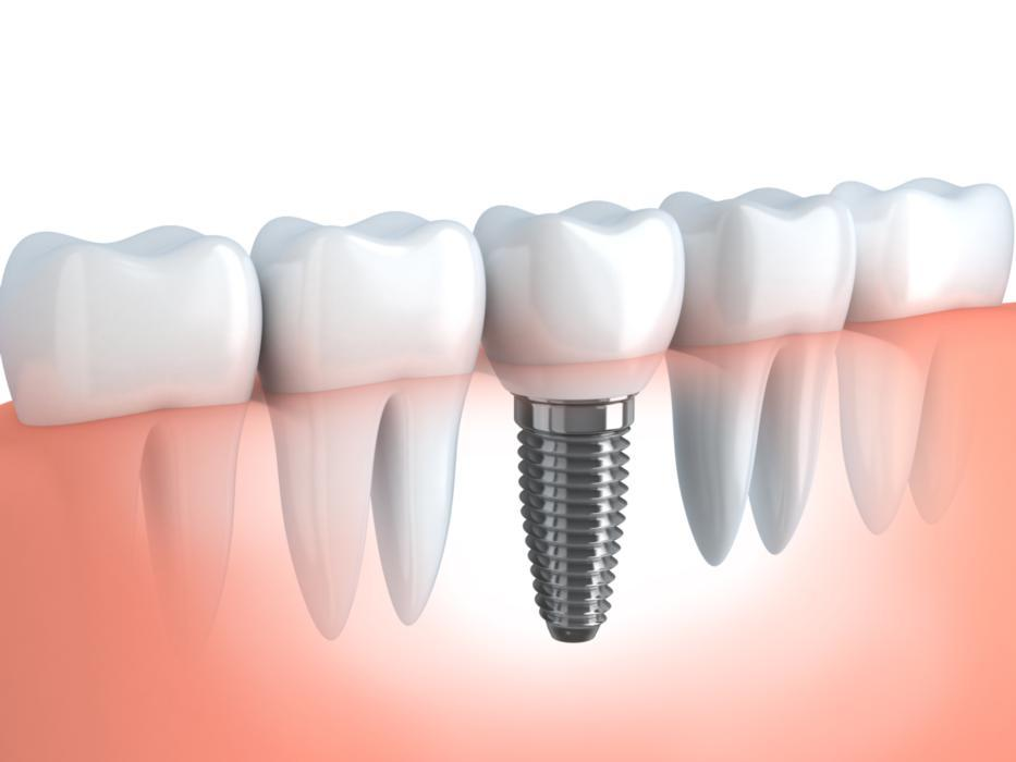 Dental Implants | Evansville, IN | Reliant Family Dental