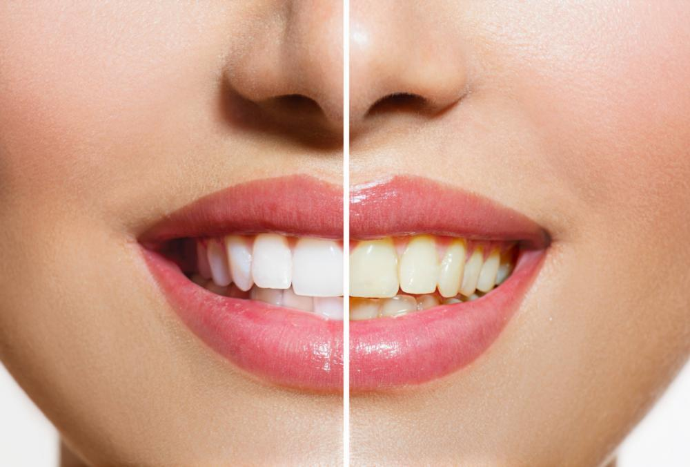 a before and after image of a smile that has been whitened | dentist Evansville IN