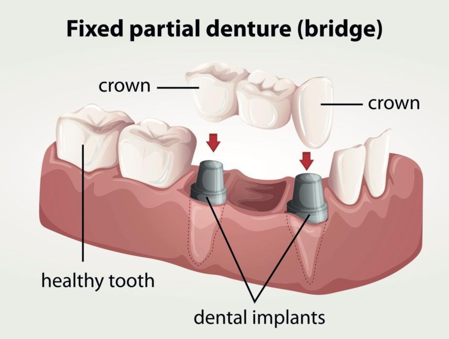 A diagram of a fixed dental bridge | Dental implants evansville in