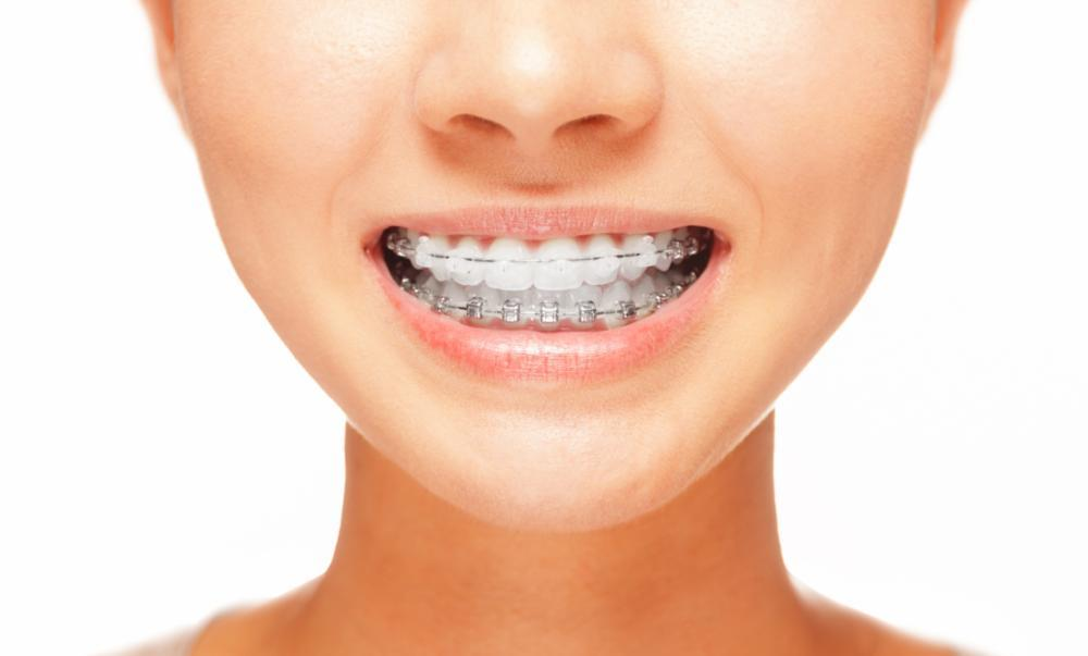 A woman with braces smiles | Six Month Smiles Evansville, IN