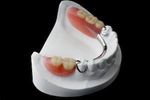 A partial denture fits into a mold | Dentures and partials evansville in