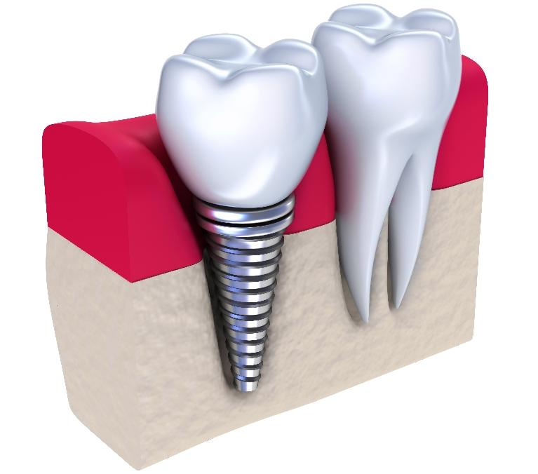 dental implants evansville