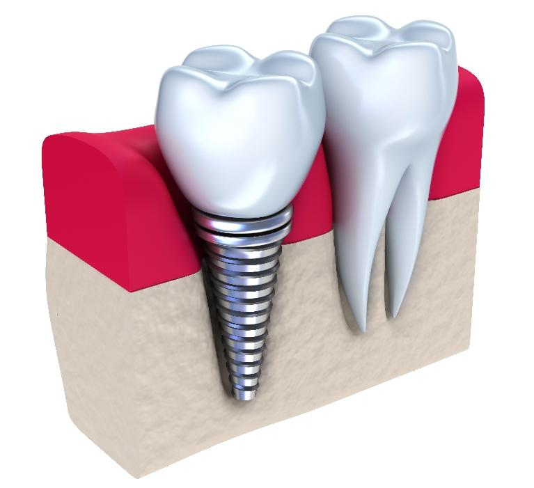 a diagram of a dental implant | dental implants evansville
