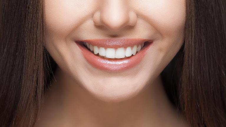 A woman's close up smile | Cosmetic Dentist Evansville IN