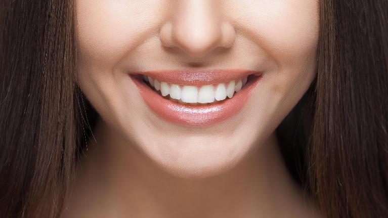 A close up of a woman's smile | Cosmetic Dentist Evansville