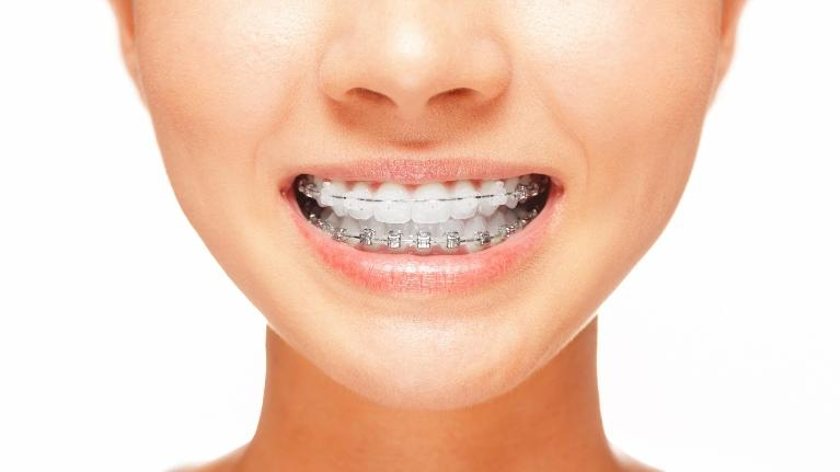 A mouth with braces smiles | Evansville IN Six Month Smiles