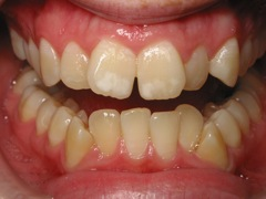 Close up of crooked front teeth | Before Braces