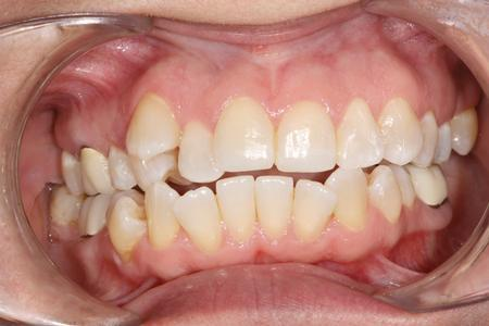 Crowding on top teeth | Six Month Smiles