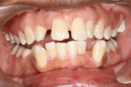 Crooked and crowded teeth | Dentist Evansville IN
