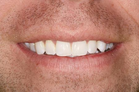 Close up of man's smile | Evansville IN Dentist