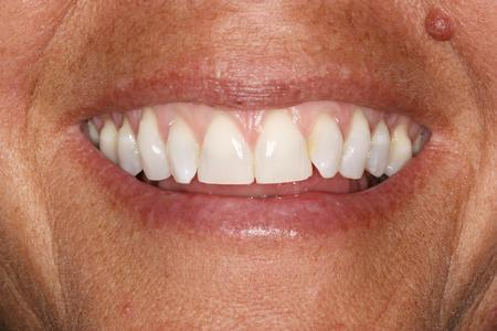 Close up of woman's smile | Dentist Evansville IN