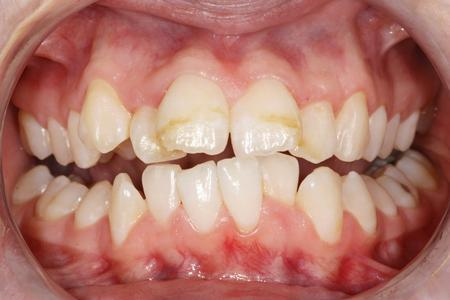 Crowded and crooked teeth | Evansville IN Dentist