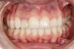 We-Revamped-This-Patient-s-Smile-With-Six-Month-Smiles-And-Whitening-After-Image