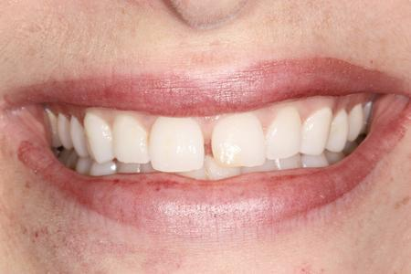 Gap between front teeth | Dentist Evansville IN