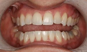 Six Month Smiles And Teeth Whitening Helped This Patient Down The Path To Their New Smile