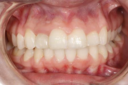 We Revamped This Patient's Smile With Six Month Smiles And Whitening
