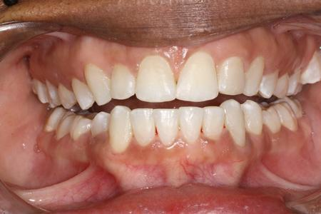 Teeth straightened by Six month smiles | Evansville IN Dentist