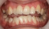 Six-Month-Smiles-And-Teeth-Whitening-Helped-This-Patient-Down-The-Path-To-Their-New-Smile-Before-Image