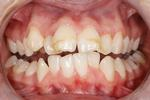 We-Revamped-This-Patient-s-Smile-With-Six-Month-Smiles-And-Whitening-Before-Image