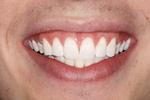 Teeth-Whitening-For-A-Brighter-Happier-Smile-After-Image