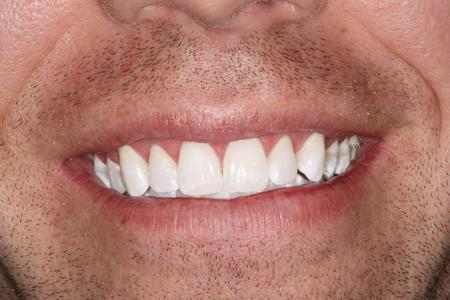 Close up of man's smile after whitening | Evansville IN Dentist