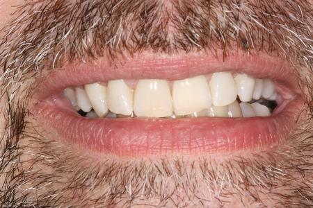 Whitened Front Teeth | Reliant Family Dental
