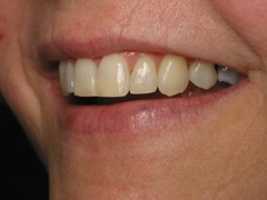 Straight Teeth After Six Month Smiles | Dentist Evansville IN