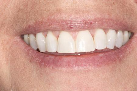 Woman's Smile After Six Month Smiles | Evansville IN Dentist