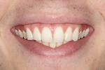 Teeth-Whitening-For-A-Brighter-Happier-Smile-Before-Image